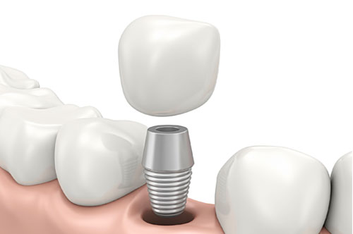 5 Advantages Of Dental Implants Compared To Other Options