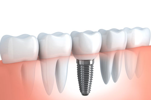 Bring Back Your Bite With Dental Implants (video)