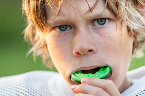 Get in the Game with an Athletic Mouthguard