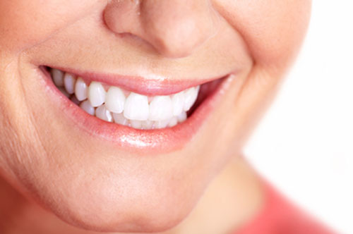 Does Teeth Whitening Work? Professional Ones Do